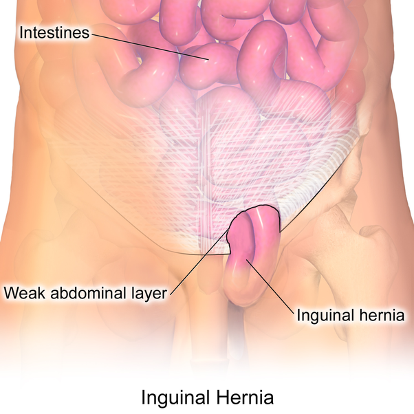 hernia surgery how long does it take to recover