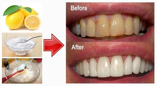 lemon juice and baking soda for teeth