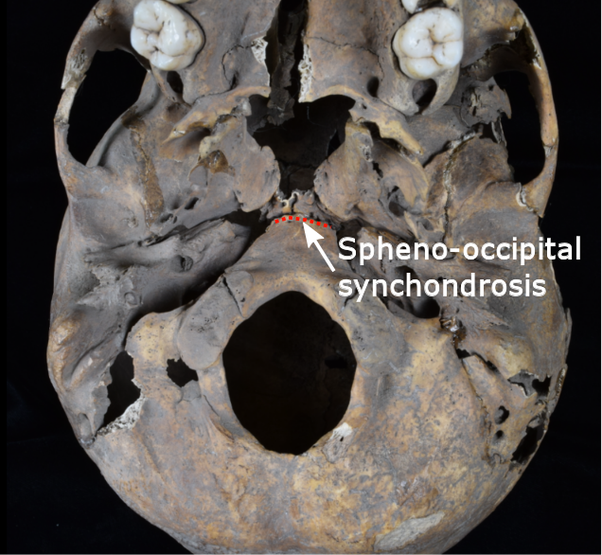 Dhmbnnibpjdi9m A synchondrosis (or primary cartilaginous joint) is a type of cartilaginous joint where hyaline cartilage completely joins together two bones. https www quora com why is the spheno occipital synchondrosis not considered as a suture does it not join the sphenoid bone with the occipital bone