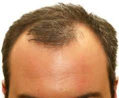 How to prevent frontal hair loss
