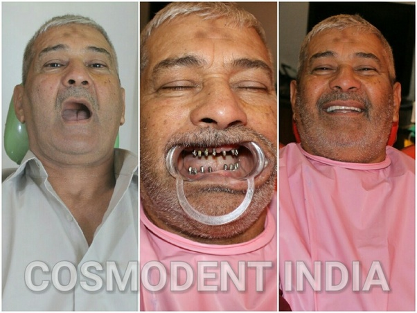 What Is The Cost Of Tooth Implant In India Quora