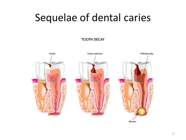 Does untreated tooth decay or tooth cavity cause cancer ...