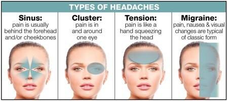 Rebound headaches facial pain