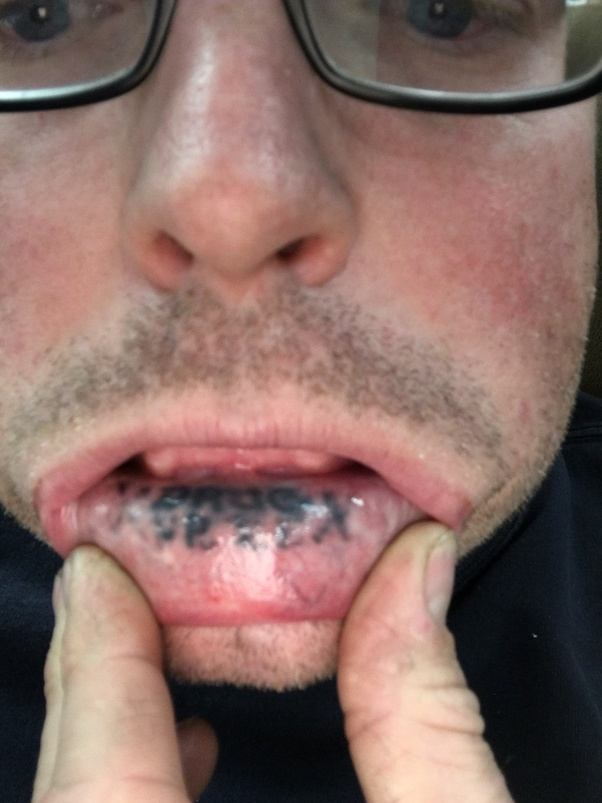 how long do inner lip tattoos last quora