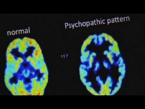 When looking at a brain scan; what is the difference ...