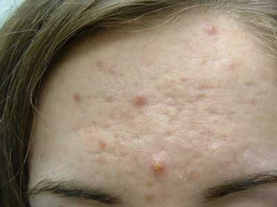 I have a little scar on my forehead, how do I get rid of it? - Quora