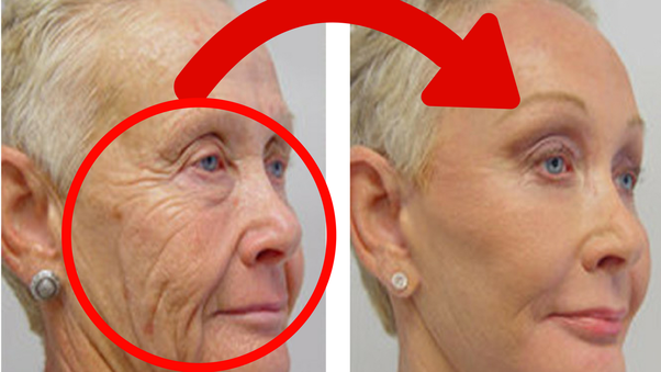 What S The Best Treatment For Wrinkles Quora