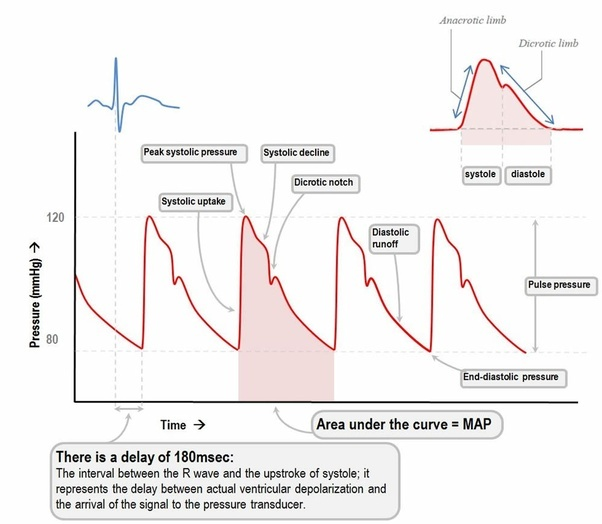 A Line Arterial Monitoring : Which pressure is the blood static or dynamic