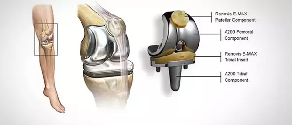 What is joint replacement surgery quora estimated cost inr 2 3 lakhs ccuart Choice Image