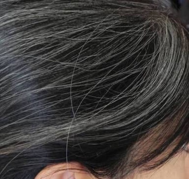 How Can The Growth Of Grey Hair Be Stopped Or Reduced Quora