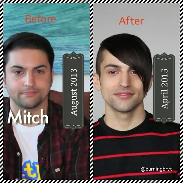 Did Mitch Grassi from Pentatonix have jaw shaving surgery