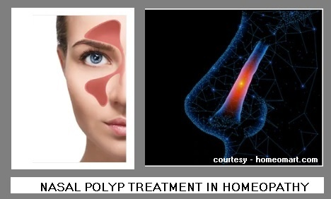 Can homeopathy treat last stage nasal polyps without surgery