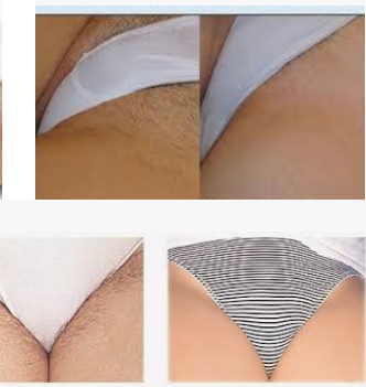 Bikini Line Hair Removal Laser Zona Ilmu 10