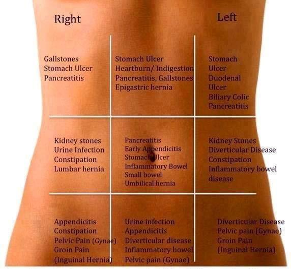 Why would the lower right side of my stomach hurt what are some you should get an evaluation by a physician if pain persists or worsens this diagram may help you but there are a lot of possibilities of what is ccuart Choice Image