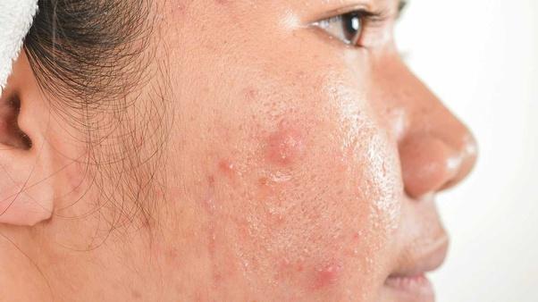 How To Remove Acne Scars Quora
