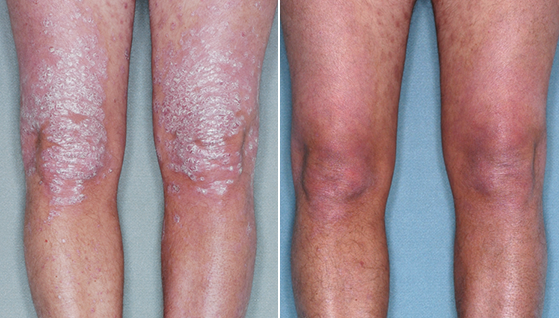 Is Psoriasis Completely Curable By Homeopathy Treatment