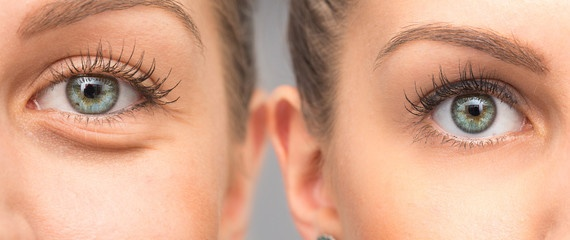 Why are so many Koreans wanting to get double eyelid surgery? - Quora