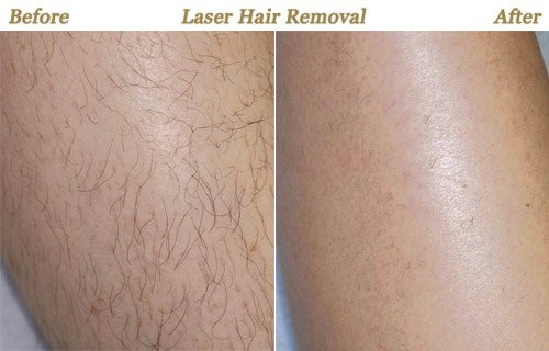 Which Is The Best Doctor For Permanent Laser Hair Removal In