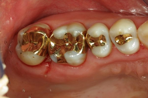Are there any pure metal fillings for my posterior teeth second or if you are really set on pure there is the gold foil filling solutioingenieria Choice Image