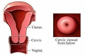 vulva lump inside my
