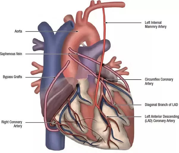 CABG Coronary Artery Bypass Graft Surgery Is Performed When The Patient Suffers From Severe Disease Or Has Blockades In Heart