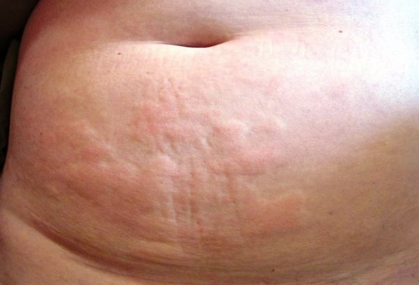 What Are Some Stress Related Hives Pictures In Adults On