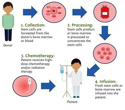 bone marrow transplants essay Bone marrow transplants are used in certain patients the patients bone marrow is killed by high doses of drugs and radiation the bone marrow is then replaced by a donor's marrow or the patient's marrow that was remove before the high amounts of drugs and radiation.