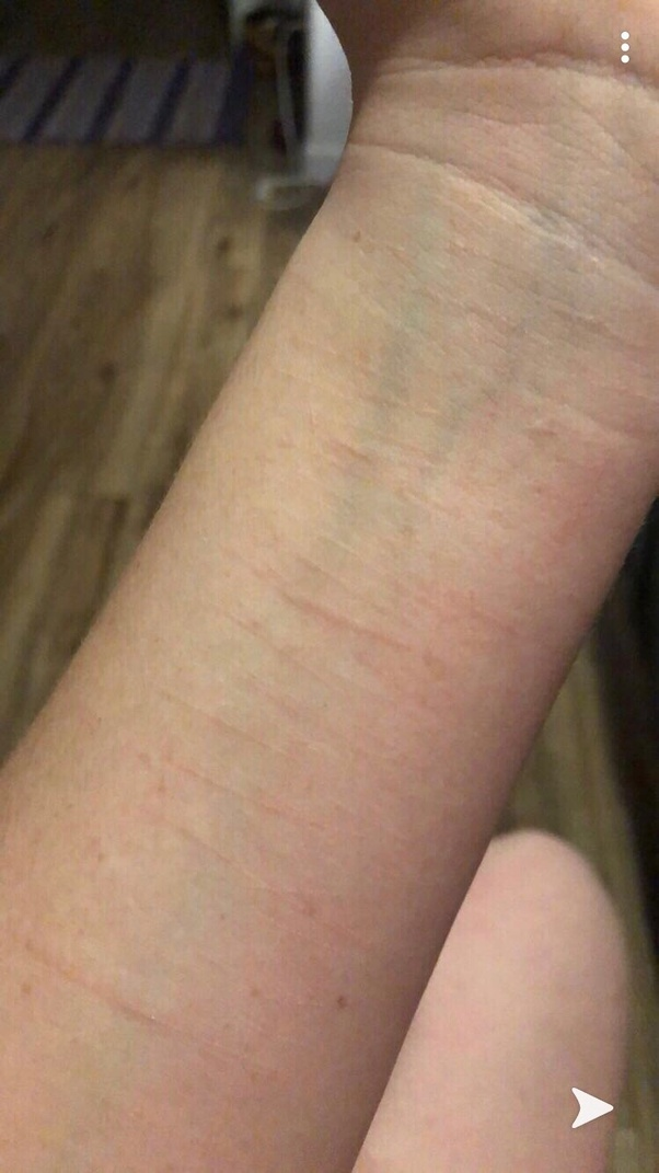 What Is It Like To Live With Self Harm Scars Quora