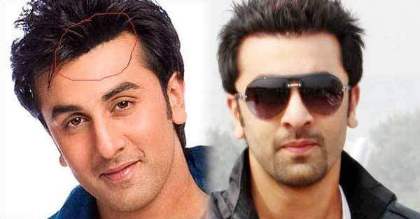 Why Are There No Bald Actors In Bollywood Quora