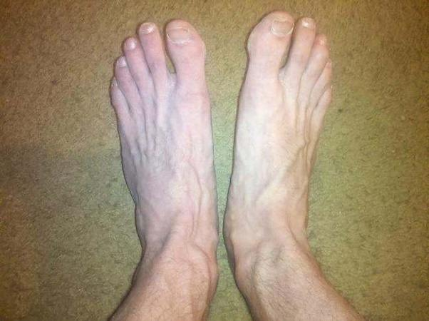 They Could Probably Use A Pedicure But I Dont Think Look Any Different Than Anybody Elses Feet And Im Pretty Typical Marathon Runner