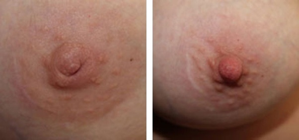 What Is The Cause Of Inverted Nipple - Quora-2656