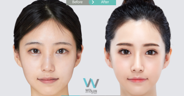 Which are the best cosmetic surgery clinics in South Korea? - Quora