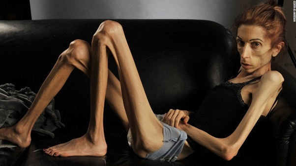 girls anorexic Super skinny