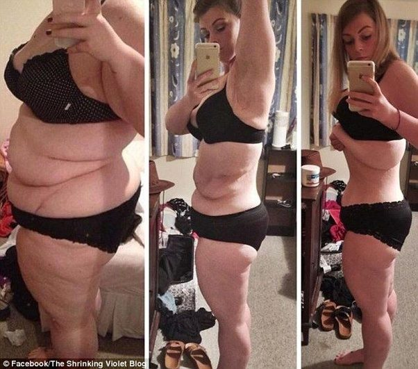 What does losing 20 pounds look like? - Quora