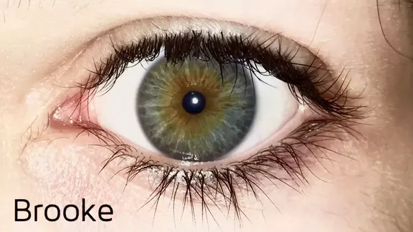 Could a person with heterochromia of the eyes be attractive Quora