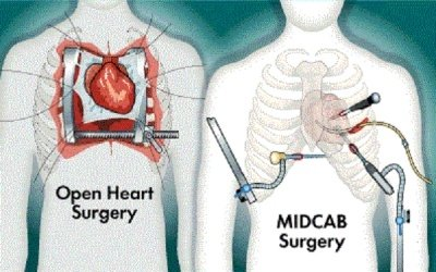 How much does open heart surgery cost in india quora in india there are many cities that provide heart treatments cities like delhi mumbai hyderabad bangalore chennai kolkata etc are the some of the ccuart Choice Image
