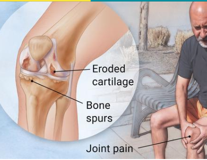 ef01e85fdd201 Bad knees caused by many different medical conditions