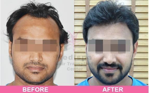 Best Hair Transplant Doctors
