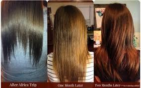 How does hair look before and after biotin treatment? - Quora