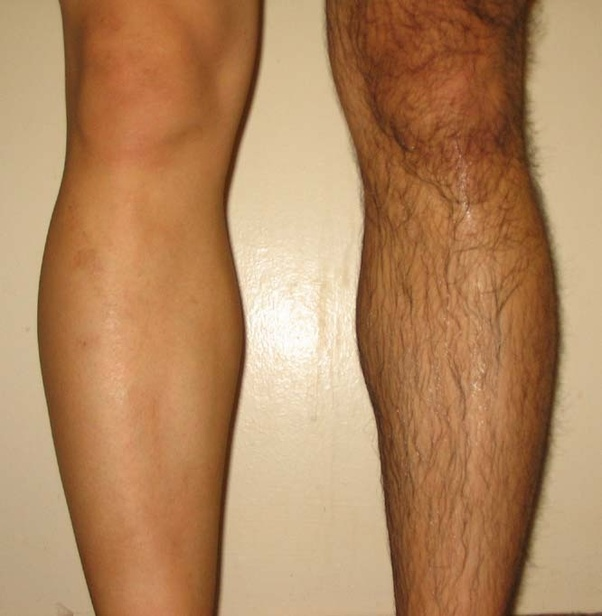 Should guys shave their legs? - Quora