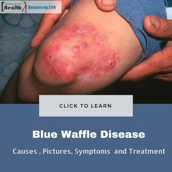 blue waffles std