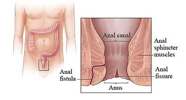 symptoms diagnosis Poor anal sphincter muscle