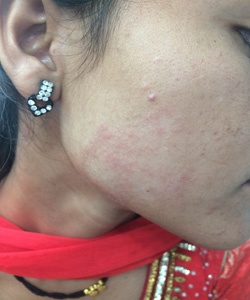 Was specially facial skin disorders and yeast infections have removed