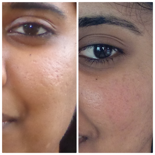 What Results Did You Get Using A Derma Roller On Acne Scars Quora