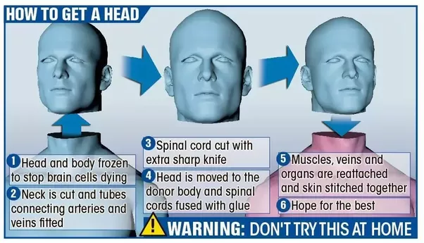 Is human head transplant possible quora for some curious minds reading this article at this time you should be asking yourself some questions why has nobody ever tried a head transplant before solutioingenieria Image collections