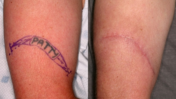 How To Remove Permanent Tattoo Without Laser Quora