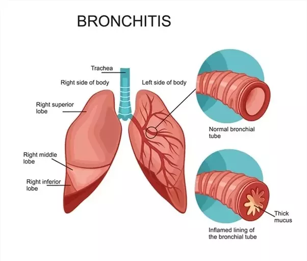 steroid breathing treatments for pneumonia