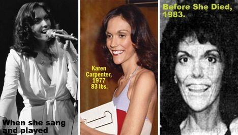Yay or Nay Karen Carpenter Topless