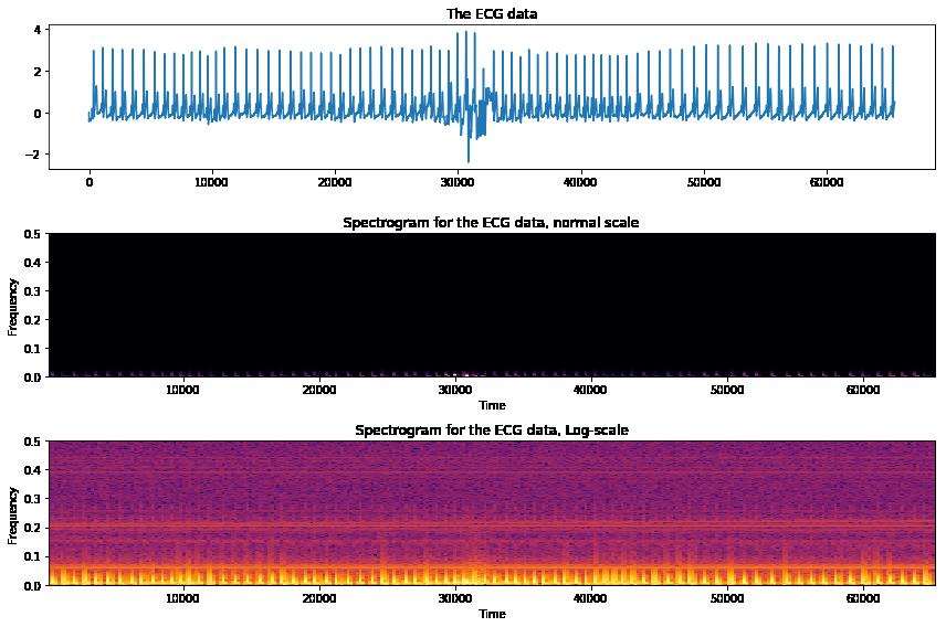 How to transform a 1D ECG signal into a 2D image using Python