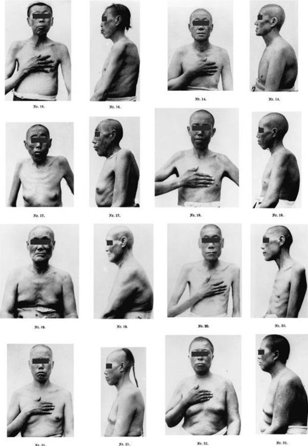 Eunuch with breasts